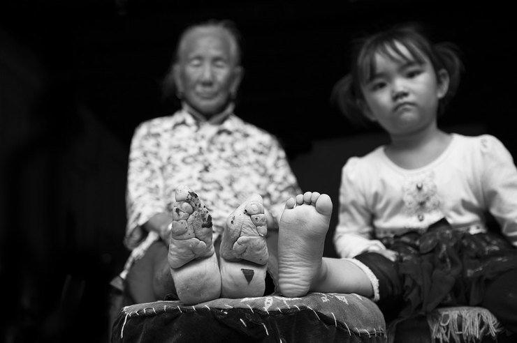 Страшная тайна «золотых лотосов»: сексуальный фетиш бинтования ног в Поднебесной золотой лотос, история, китай