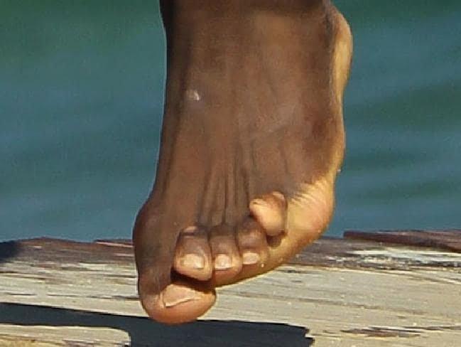 3. Ступня баскетболиста ЛеБрона Джеймса балерина, бодибилдер, велосипедист, жутко, интересно, спорт, спортивные травмы, спортсмены