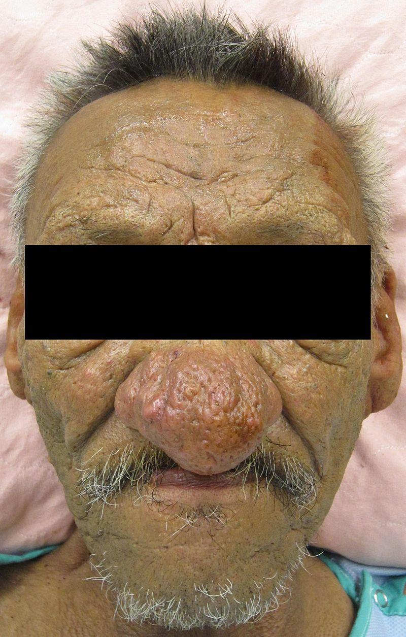 Что делать с красными щеками, чтобы не вырос нос здоровье,кожа,купероз,лечение,лицо,розацеа,сосуды