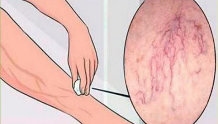 5 мощных средств для избавления от варикозной сетки и предотвращения появления варикозных узлов