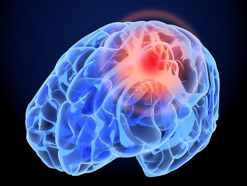 Дыхательная гимнастика для сердца и головного мозга после инсульта