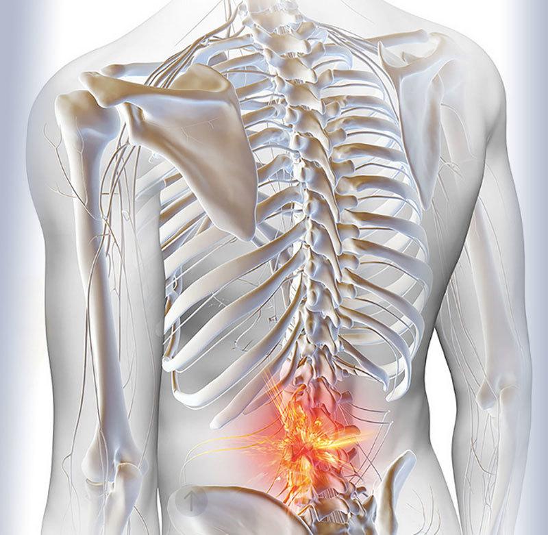 Лечим позвоночник: Упражнения при остеохондрозе