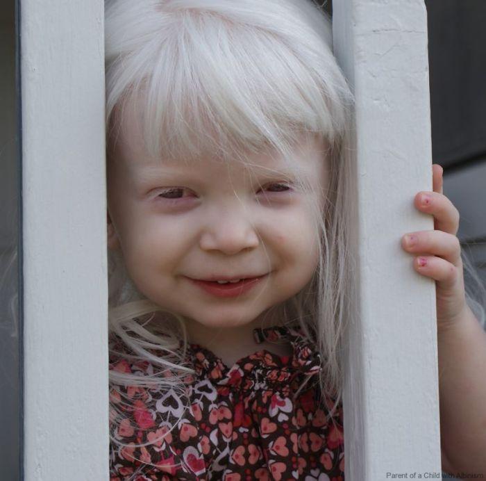 Девочка с благоговейным именем Лира заглядывает через перила.