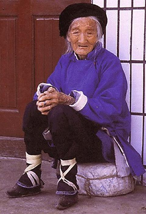 Страшная тайна «золотого лотоса»: история дикой китайской традиции бинтования ног