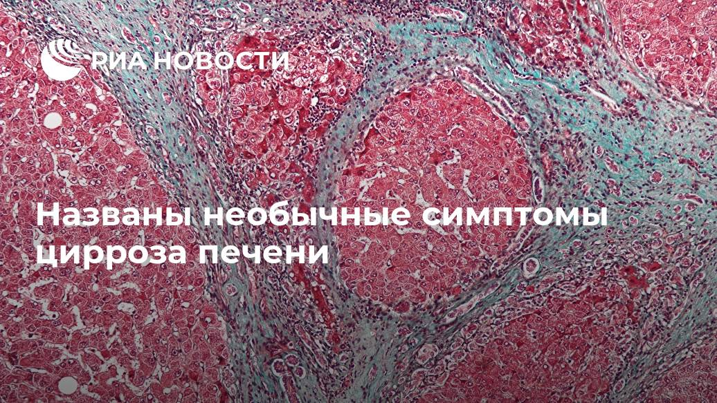 Названы необычные симптомы цирроза печени Лента новостей