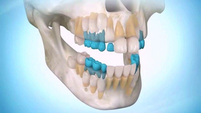 Учёные нашли стволовые клетки в зубах взрослого человека открытия, тело, человек