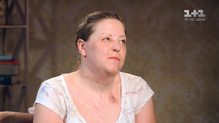 Татьяна пережила 15 пластических операций, но не все они были успешными.