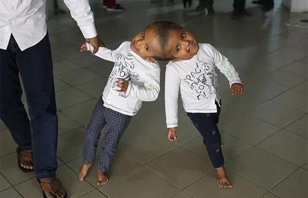 Сросшиеся головами близнецы …