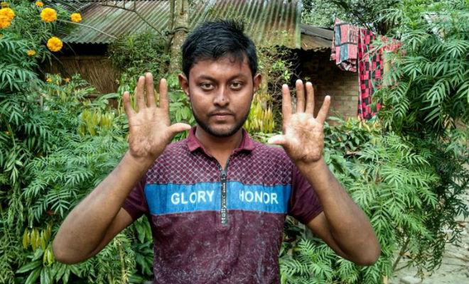 Уже три поколения одной семьи из Бангладеш рождаются и не имеют отпечатков пальцев Культура