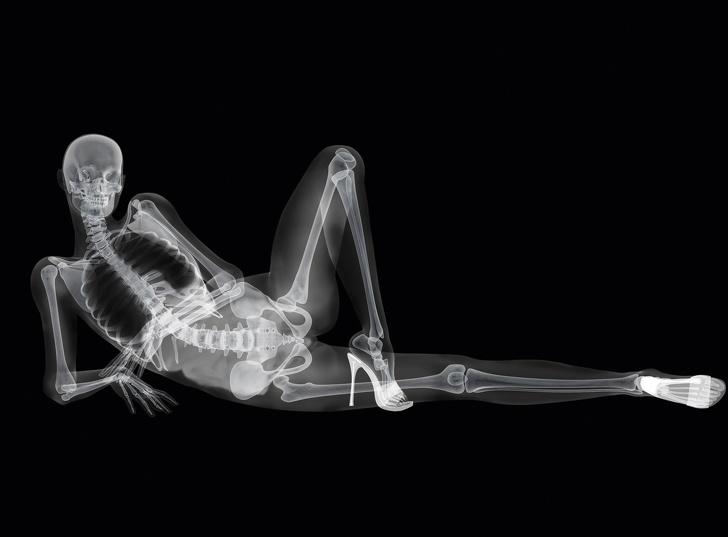 есть занятия сексом под рентгеном самых популярных личностей