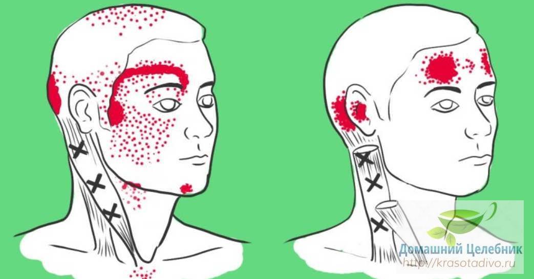 Нехватка 4 важных веществ провоцирует головную боль