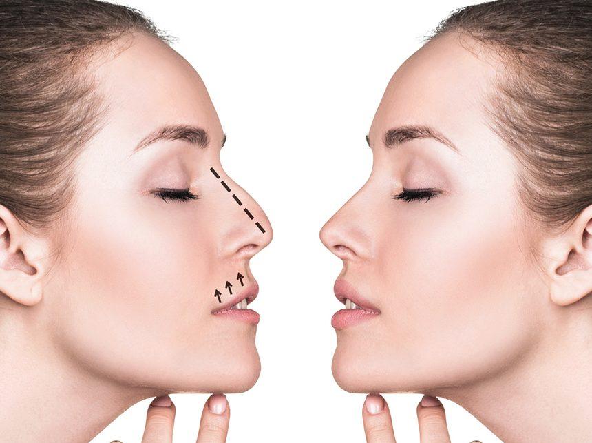ринопластика девушки друг напротив друга с пунктиром на носу