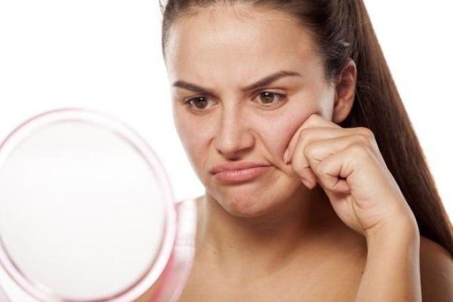 Что такое брыли, почему появляются и как избавиться?