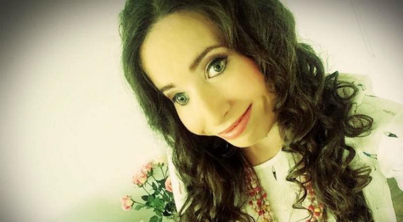 «Я самый счастливый человек в мире»: девушка родилась с «половиной лица» и вдохновляет весь мир своими селфи