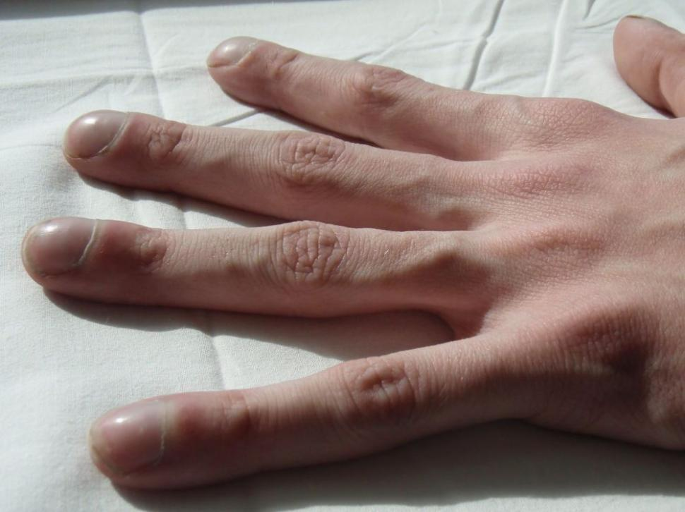 Состояние рук и здоровье: 9 симптомов заболеваний болезни,здоровье,состояние рук