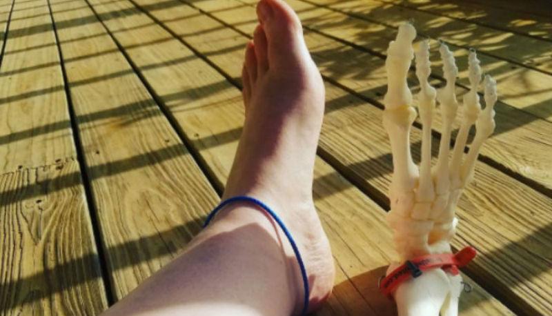 Американка ведет инстаграм с приключениями своей ампутированной ноги