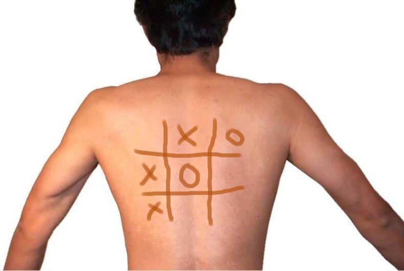 Почему йод наносят именно сеточкой йод, йодная сетка, лечение