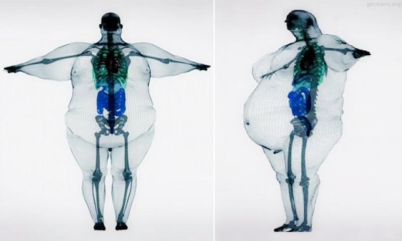 Микробиота ожирения