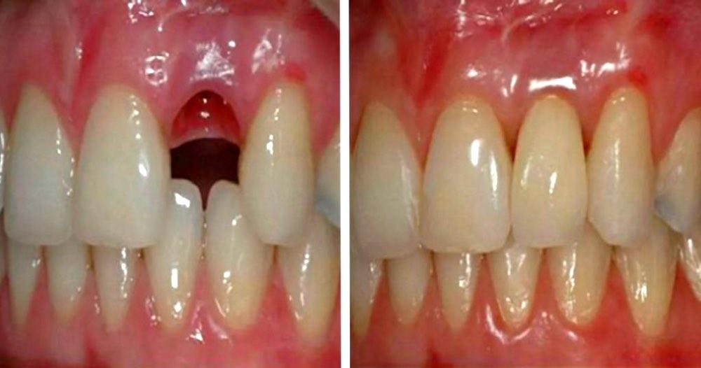 СЕНСАЦИЯ! Теперь вырастить зубы станет возможным в любом возрасте