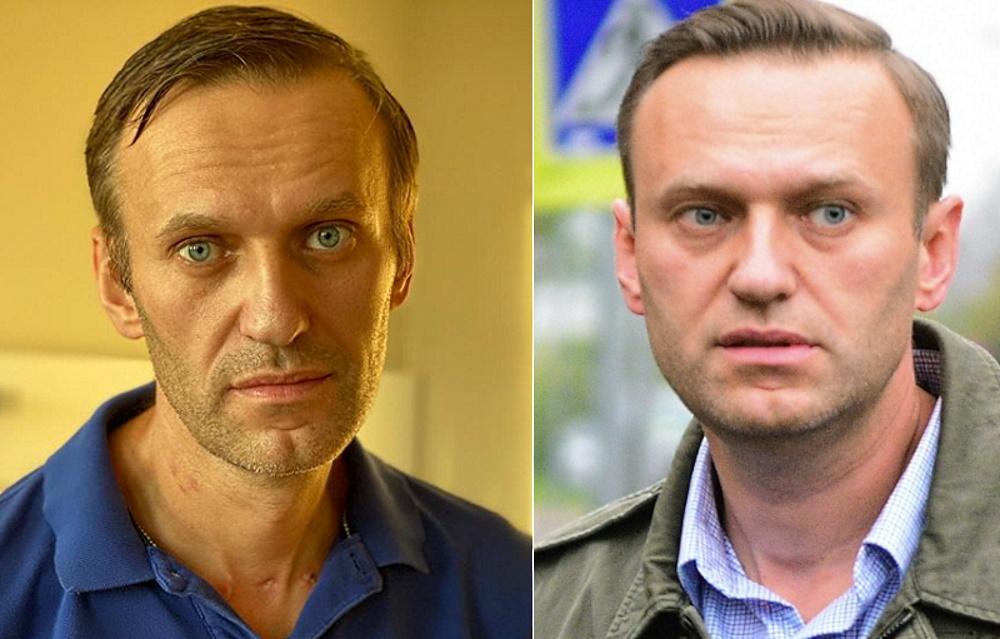 Шпионская история: в Германии – не Навальный, а его двойник «Шарите», Навального, врачи, человека, голове, Израиля, шрама, подбородок, который, целом, вытянули, подбородкаК, господину, Гельфанду, просит, только, вопрос, глаза, сошел, продолжает