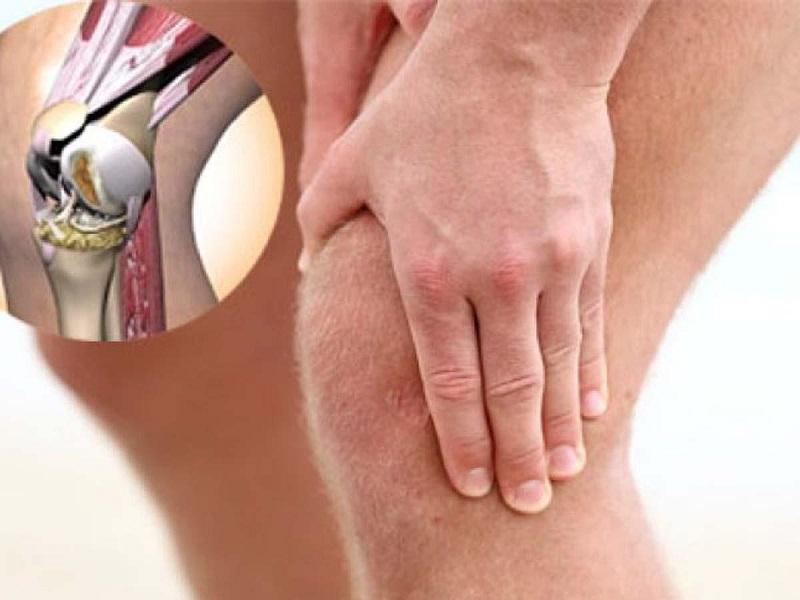 Возможно вылечить артрит коленных суставов фото