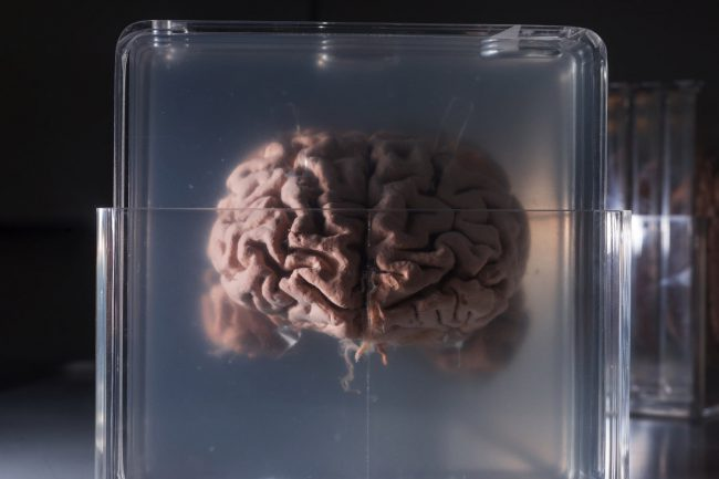 Компания предлагает заморозить ваш мозг для его оцифровки в будущем
