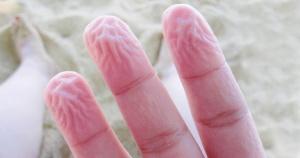 9 странных вещей, которые делает тело для нашей защиты