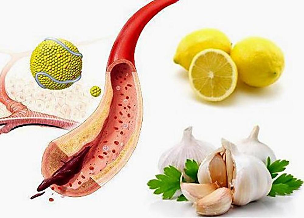 Старое проверенное средство для очищения артерий и понижения холестерина