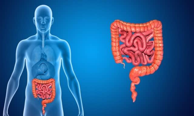 Рак кишечника – причины, стадии, признаки, симптомы, диагностика и лечение