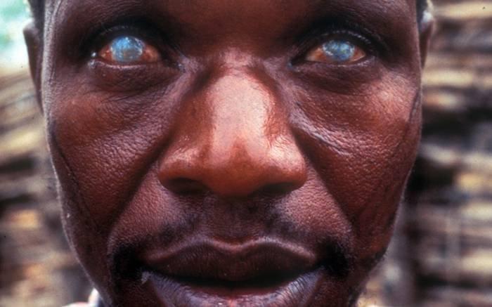 Самые страшные паразиты, которые могут жить в человеческом теле