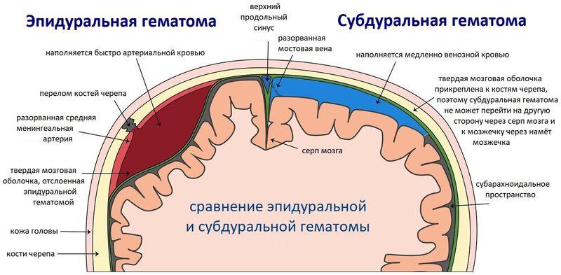 сравнение субдуральной и эпидуральной гематомы