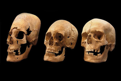 Раскрыта загадка древних вытянутых черепов