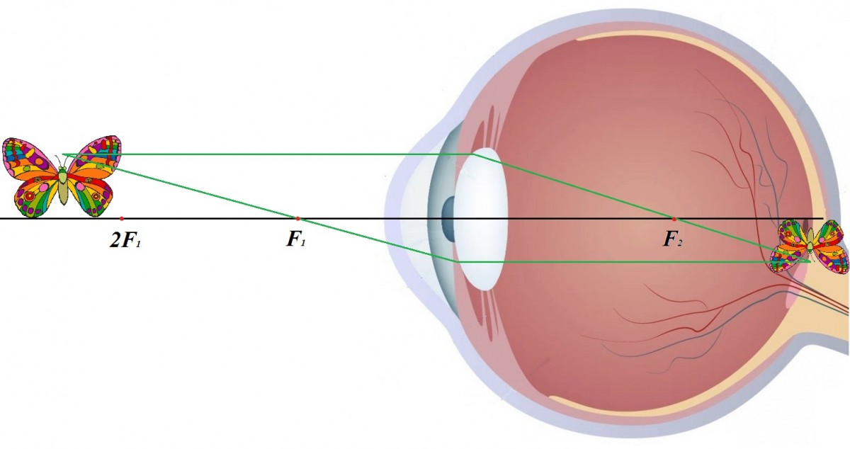 Что нужно делать чтобы восстановить зрение