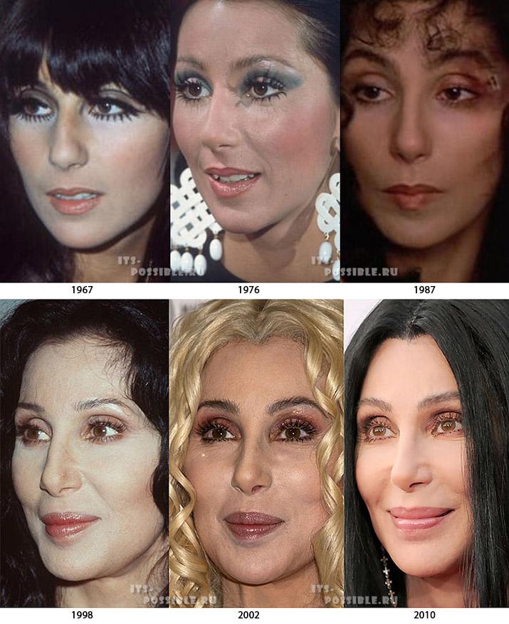центре ревды, чудеса пластической хирургии фото до и после снять