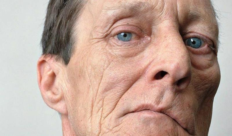 Признаки надвигающегося инсульта: как тело предупреждает об угрозе врач
