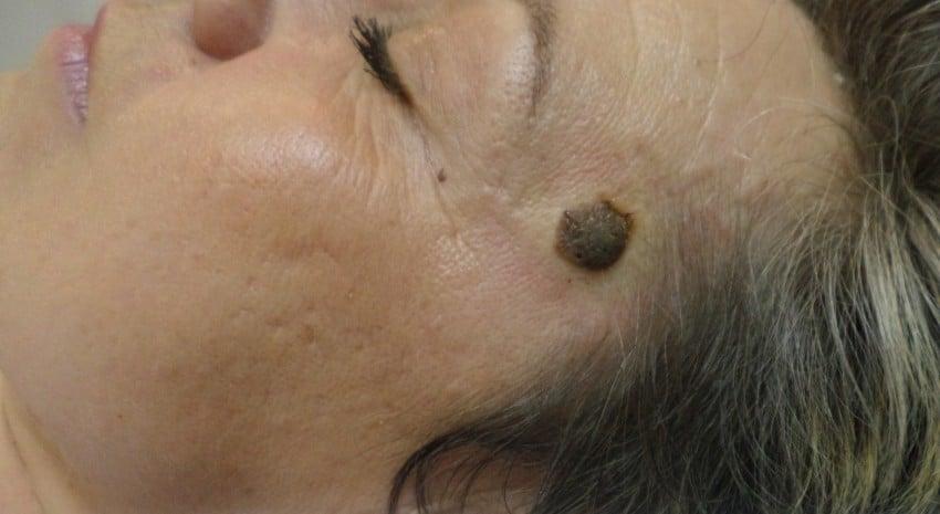 Наросты на лице: разновидности, как избавиться дерматология,здоровье,кожа