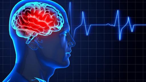 Предложен быстрый тест, который помогает интерпретировать симптомы инсульта