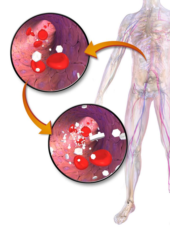 Повышенный уровень Ñахара в крови: 13 признаков