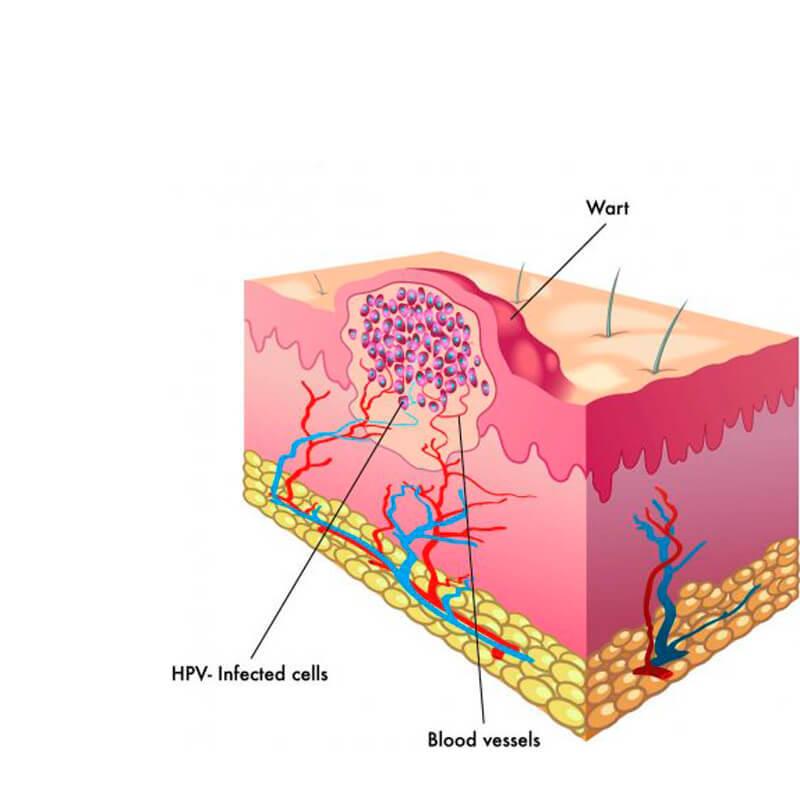 Доктор Огулов: Как убрать папилломы на шее