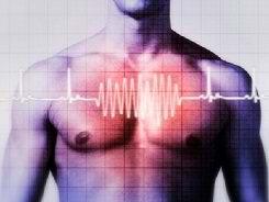 Аритмия сердца: причины, сим…