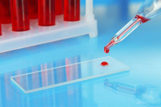 Пьезосенсор выявит инфекции и травмы по капле крови