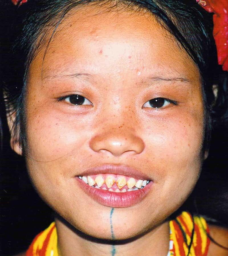 5. Ментавай - подпиливание зубов мир, ритуал, странность