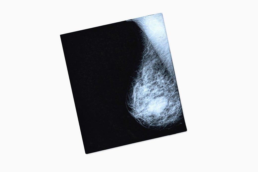 Что нужно знать о раке груди: От факторов риска до профилактики болезни,здоровье,медицина,онкология,рак груди