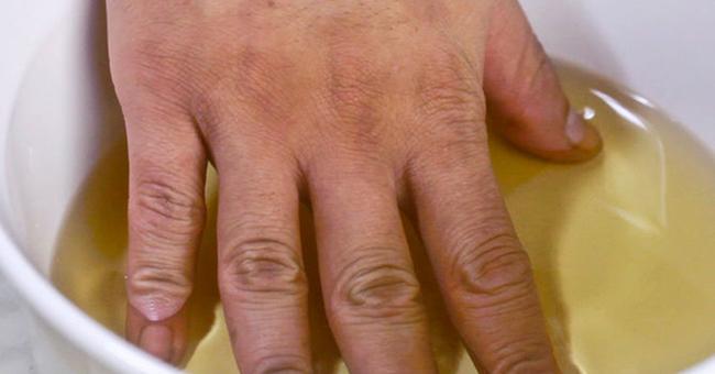 сильные боли при артрите как помочь