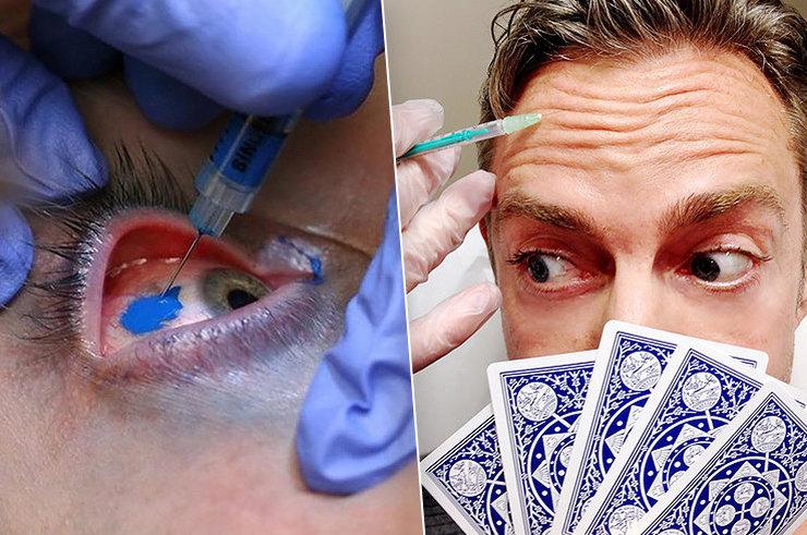 Красота требует жертв: самые шокирующие пластические операции