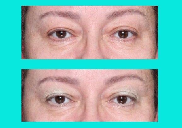 Так уже нельзя: 2 оплошности в макияже женщин 50+ с нависающими веками нависание, только, макияжа, визуально, взгляд, светлые, образом, получается, чтобы, глаза, женщины, многие, нижнему, используют, второй, тенями, более, лучше, подвижное, линия