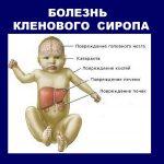 Кубанские врачи впервые вылечили смертельный «кленовый сироп» у ребенка