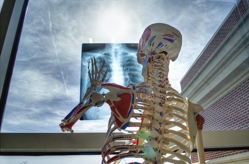 15 невероятных фактов о костях, которые вы почти наверняка не знали