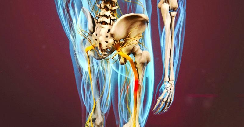 Разблокируй седалищный нерв:…