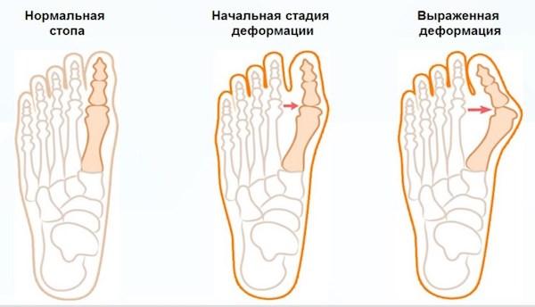 Растущие косточки на ногах - народные методы лечения доступные каждому